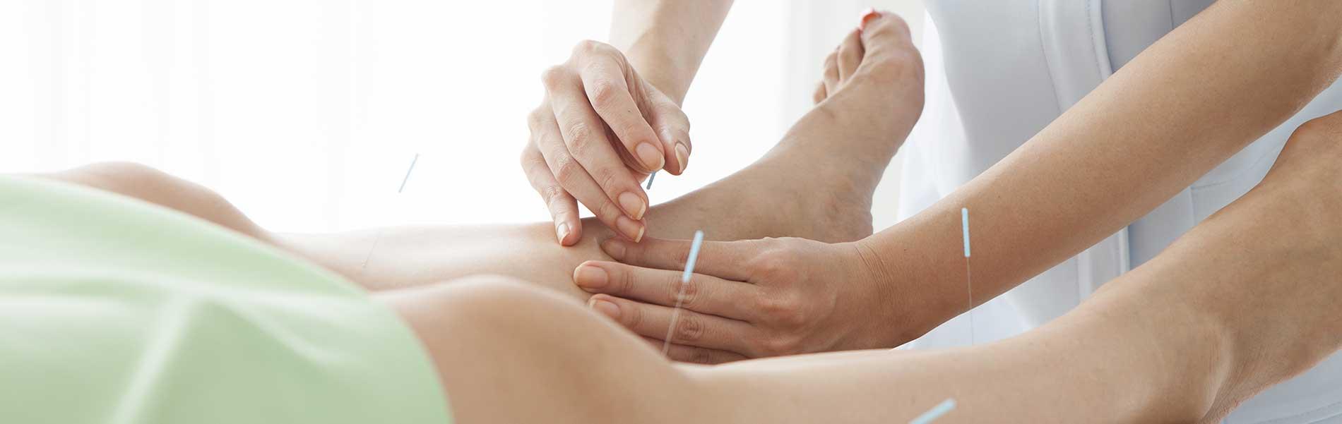 acupunctuur harderwijk