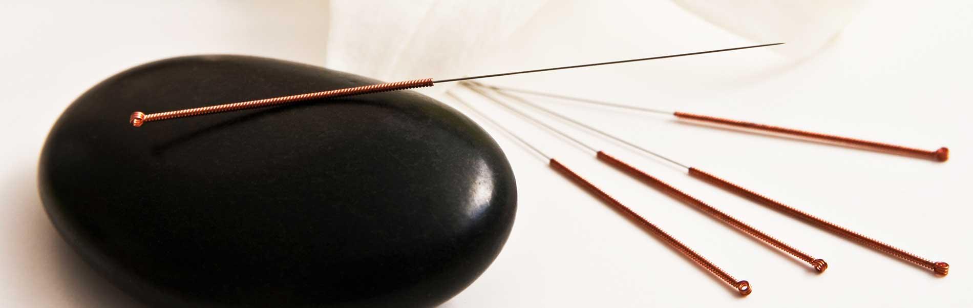 acupunctuur voorthuizen